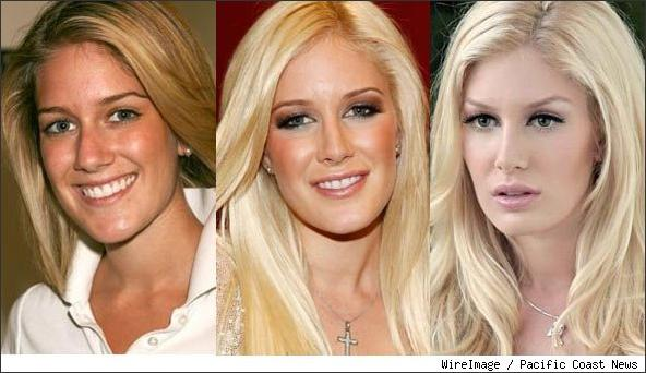 heidi montag surgery disaster. H for Heidi.. how original.